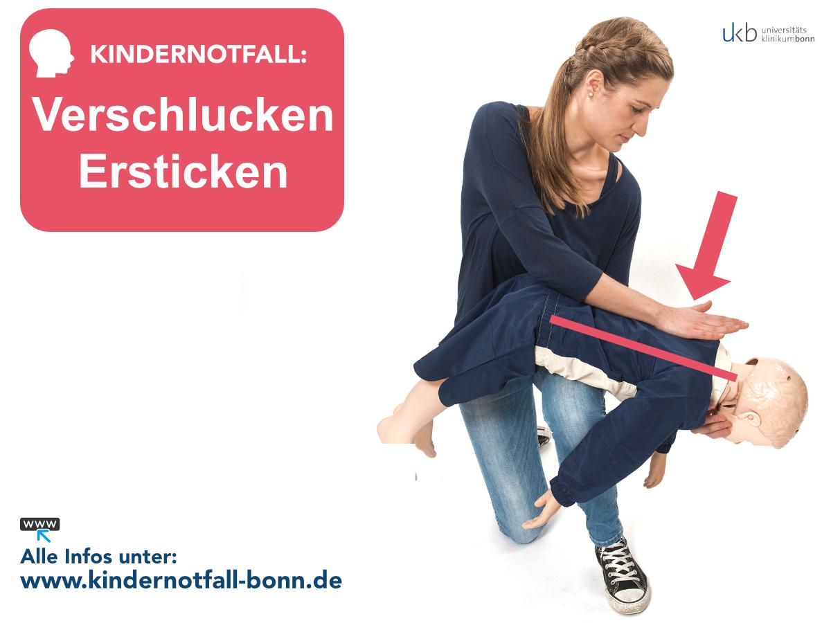 Verschlucken/Ersticken im Kindesalter | Kindernotfall Bonn - Erste ...
